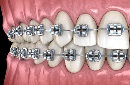 Healthy Teeth with metal braces. Medically accurate dental 3D illustration Standard-Bild - 130665398