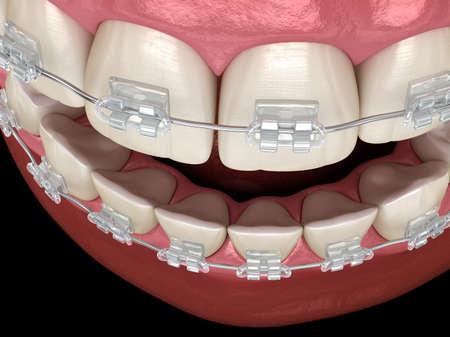 Teeth Clear braces. Medically accurate dental 3D illustration Standard-Bild - 130665396
