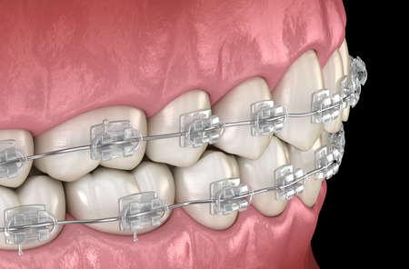 Teeth Clear braces. Medically accurate dental 3D illustration Standard-Bild - 130665402