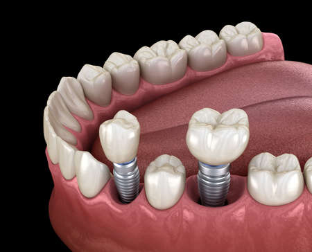 Premolar and Molar tooth crown installation over implant - concept. 3D illustration of human teeth and dentures