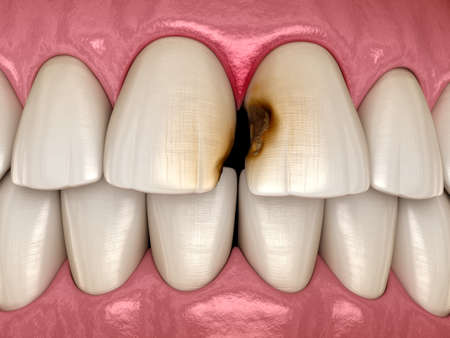 Central incisor teeth damaged by caries. Medically accurate tooth 3D illustration.