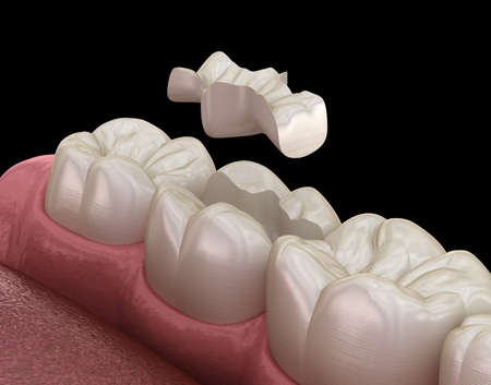 Inlay ceramic crown fixation over tooth. Medically accurate 3D illustration of human teeth treatment Stock fotó