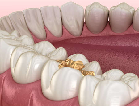 Golden Inlay crown fixation over tooth. Medically accurate 3D illustration of human teeth treatment