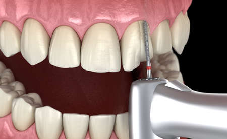 Central Incisor preparation process for dental Veneer placement. Medically accurate 3D illustration 스톡 콘텐츠 - 132714777