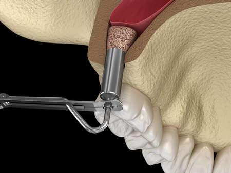 Sinus Lift Surgery - Adding new bone. 3D illustration