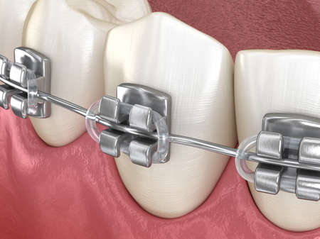 Healthy Teeth with metal braces, Macro view. Medically accurate dental 3D illustration
