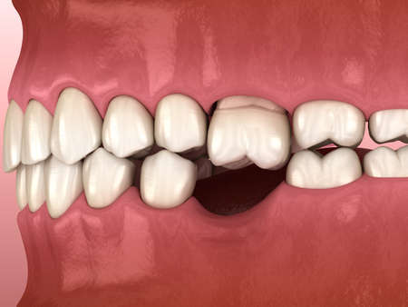 Teeth shift deformatiuon after losing molar tooth. 3D illustration of Popov Godon phenomenon
