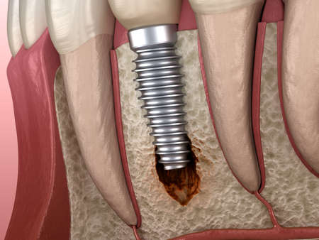 Periimplantitis with visible bone damage. Medically accurate 3D illustration of dental implants concept