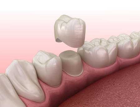 Preparated premolar tooth and dental crown placement. Medically accurate 3D illustration