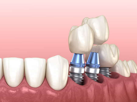 3 tooth crowns placement over 3 implants - concept. 3D illustration of human teeth and dentures Standard-Bild