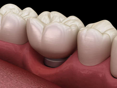 Peri-implantitis with visible gum recession. Medically accurate 3D illustration of dental implants concept