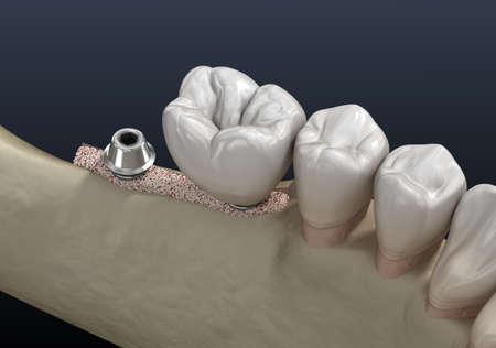 Cleavage of the alveolar ridge: implantation. Dental surgery, 3D illustration