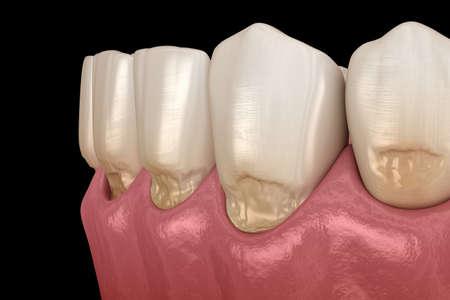 Abfraction of anterior teeth. Medically accurate 3D illustration Archivio Fotografico