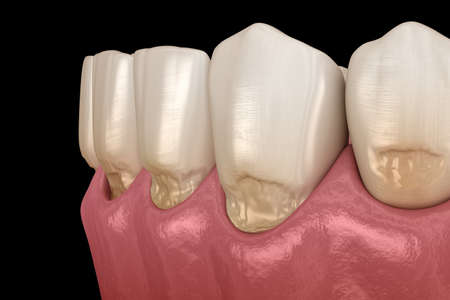 Abfraction of anterior teeth. Medically accurate 3D illustration Stock Photo