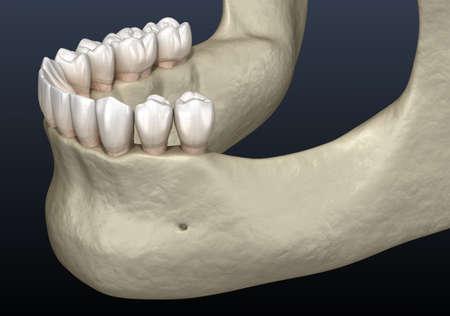 Mandibular Jaw, bone recession after losing molars teeth. Medically accurate dental 3D illustration