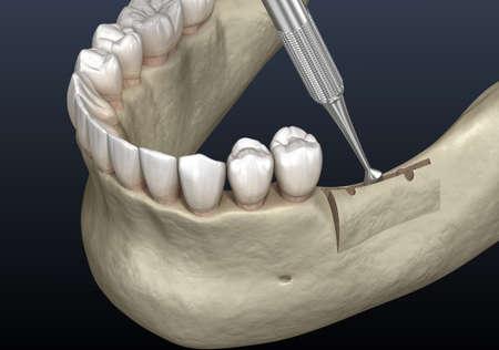 Cleavage of the alveolar ridge, augmentation. Dental surgery, 3D illustration