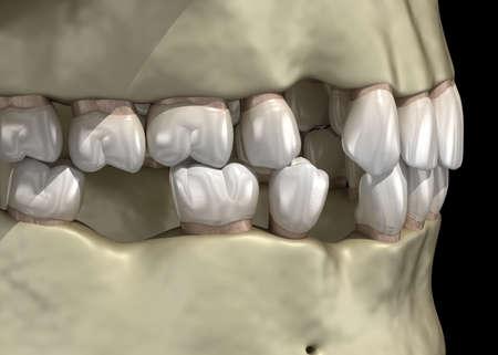 Teeth shift deformatiuon after losing teeth. 3D illustration of Popov Godon phenomenon