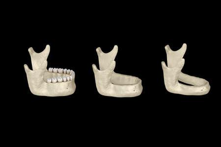 Mandibular Jaw, bone recession after losing teeth. Medically accurate dental 3D illustration