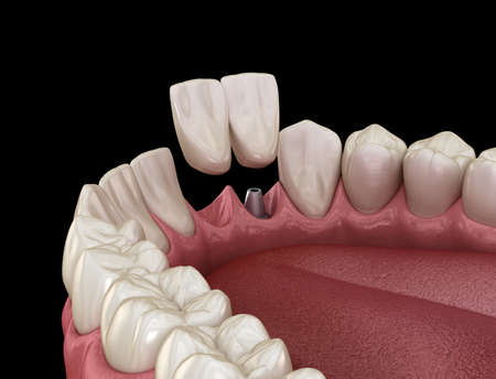 Cantilever bridge implant based, frontal tooth recovery. Medically accurate 3D animation of dental concept