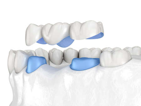 Porcelain Dental bridge of 3 teeth over molar and premolar. Medically accurate 3D illustration of human teeth treatment