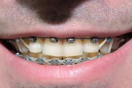 Impure braces on the teeth in the mouth of a man