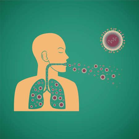 infektion: Vektor-Konzept des Menschen Atem pathogenen Virus Illustration