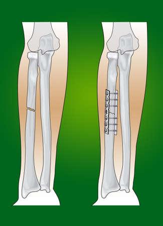 orthopaedics: radio intervenci�n quir�rgica de fractura en ortopedia