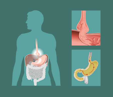 esofago: Dibujo esquem�tico de hernia hiatal Foto de archivo
