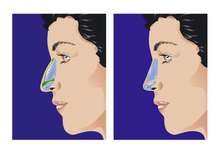 surgery doctor: Schematic sketch of rhinoplasty