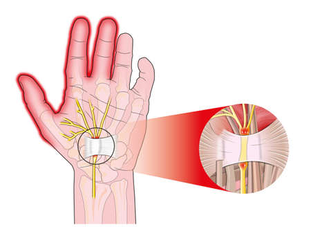 carpal tunnel syndrome: transverse carpal ligament compressed median nerve Stock Photo
