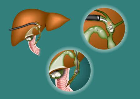 galla: disegno schematico di litotrissia in cistifellea