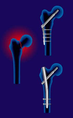 orthop�die: intervention chirurgicale fracture du f�mur dans la technique de l'orthop�die