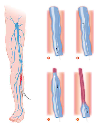 varicose: endovenous laser treatment varicose vein ablation Stock Photo
