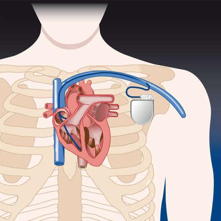 angor: Sch�ma de principe des �l�ments stimulateurs cardiaques sont sur un calque s�par� et peut �tre facilement enlev� D�grad�s seulement pas transparents Illustration