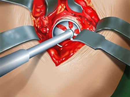 orthopedics: surgical intervention of orthopedics prosthesis of the hip Stock Photo