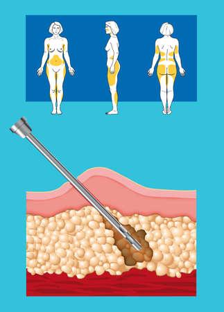 interventie: illustratie van liposuctie interventie met liposculptuur in een vrouw Stockfoto
