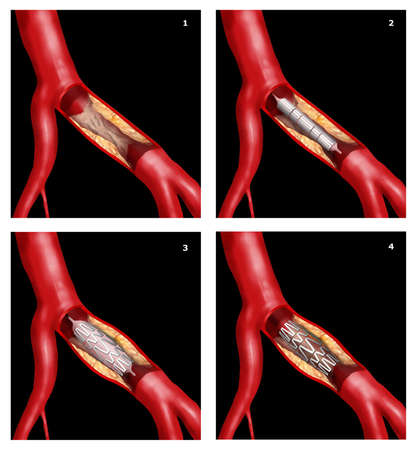 infarct: coronary stent surgical intervention in cardiothoracic technique Stock Photo