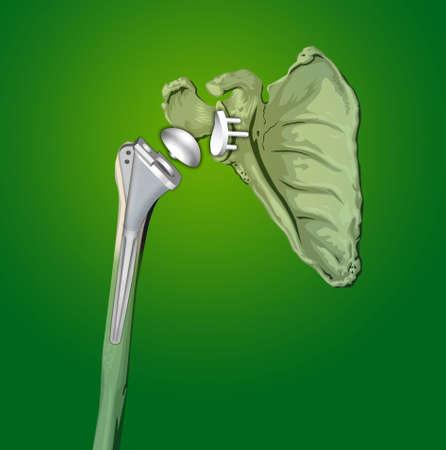 orthop�die: intervention chirurgicale de proth�se d'�paule en orthop�die