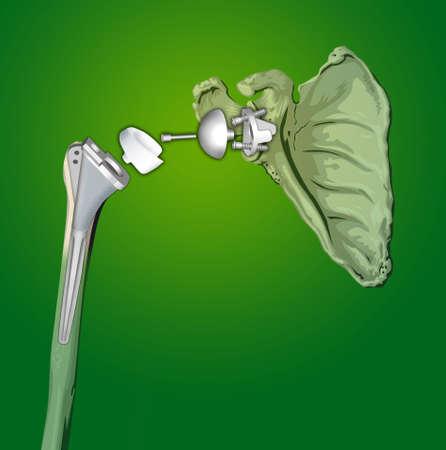 interventie: chirurgische interventie van de prothese schouder in de orthopedie Stockfoto