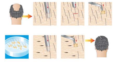 calvitie: greffe de cheveux extraction d'unit� folliculaire Banque d'images