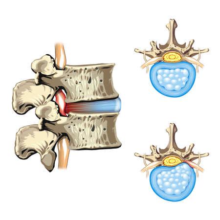 Schematische tekening van de hernia van de schijf, hernia