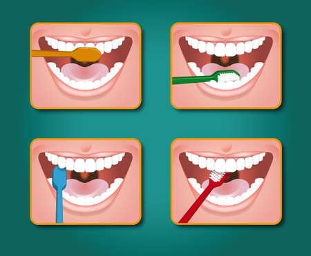 istruzione: quattro passi per pulire i denti con dentifricio e spazzolino Archivio Fotografico
