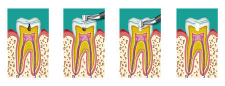 interventie: Cariës tandheelkunde tussenkomst met boor vier stappen Stockfoto