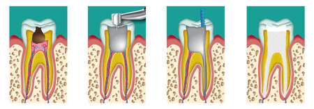 destruction and removal of the pulp from a tooth