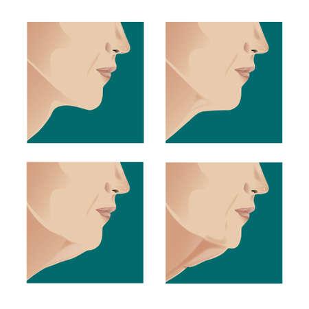 Lifting facial antes y después del tratamiento