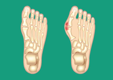 Schematic drawing of bunion. Elements are on a separate layer and can be easily removed.