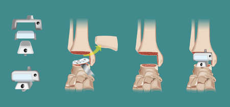 Surgical intervention of orthopedics prosthesis of the ankle - Arthroplasty. Vector elements are on a separate layer and can be easily removed or modified.