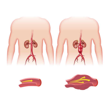 Schematic sketch of abdominal aortic aneurysm.