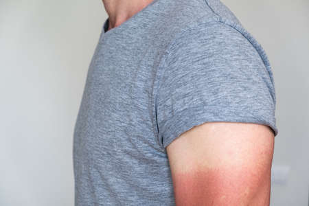 man in a gray t-shirt with a sunburned hand. visible light and red sunburnt skin. UV protection, sunscreen, sunblock.