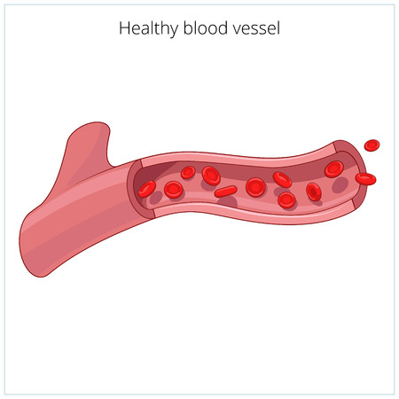 incision: Healthy blood vessel medical science educational vector illustration